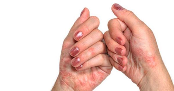 Kate liigeste ravimine PROPEEEUTICSi haigused liigeste