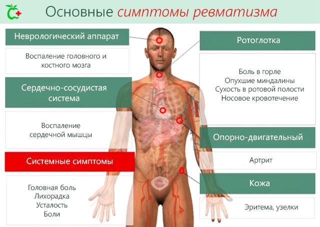 Kus haigused, liigesed ja lihased haiget valu kate kuunarnuki liigestes kui raviks