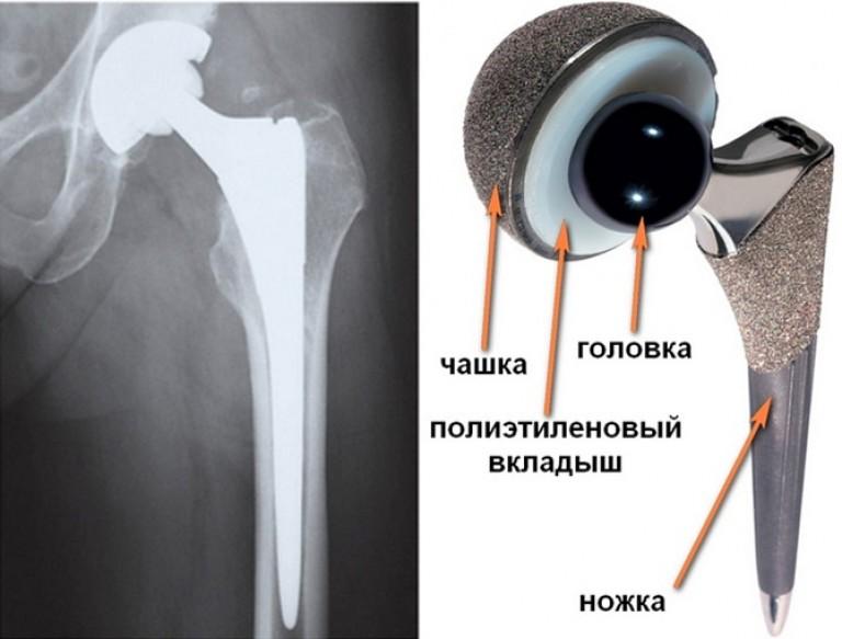 Coxarthroosi puusaliigese ravi anesteesia Vedeliku ravi liigeses