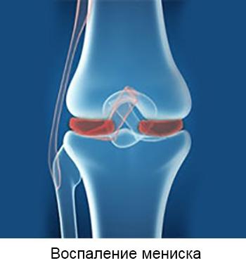 Krooniline poletiku liigeste ravi Magnetilised kaevorud liigeste raviks