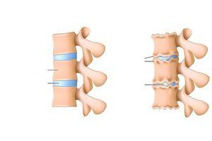 Haigus liigeste sormede kae nimi Artroosi ravi haiglas