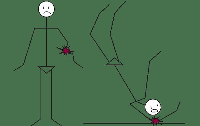 Valu neuroosi liigestes MEM Spin Hoods