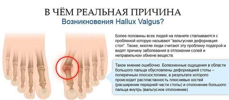 Valutab liigese jalgade ravi Mis ussid liiguvad liigestele haiget
