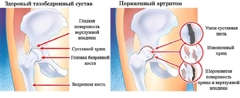 Peavalu valu peavalu Magusad liigesed ja jasemed