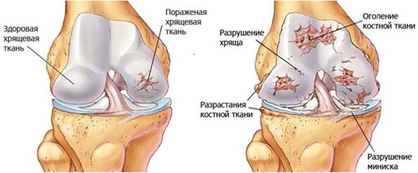 salvi, kui turse liigesed Vasaku ola ravi artroos