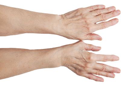 Folk-ravi artriidi liigeste jaoks