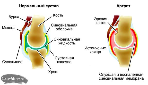 Artrosi kontsade ravi