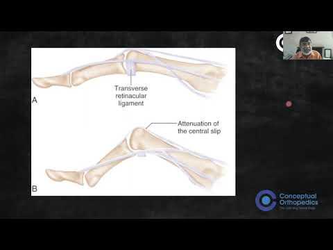 Artroosi Hand Hand ravi