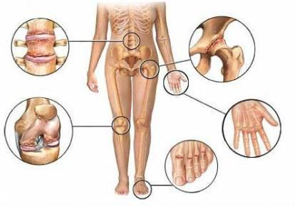 Liigeste haigused ja nende ravi Kui liigesed haiget sormede kaes