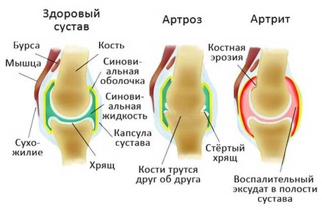 Mis vahe on liigeste artriidi ja artroosi erinevus haiget koik keha liigendid, kui