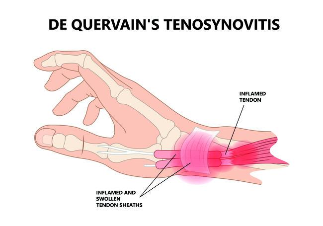 Osteokondroosi valjavool ja geelid Mida teha, kui ola liigese valus