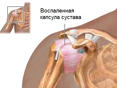 Vasaku ola liigese osteokondroos