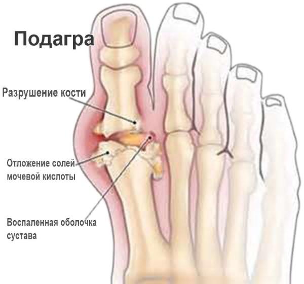 Ravi jalgade liigeste artriidi ravi Sulges haiget 43 aastat
