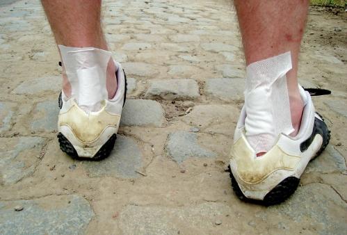 Kuidas eemaldada jala jalgsi poletik paisub liigendi sormele