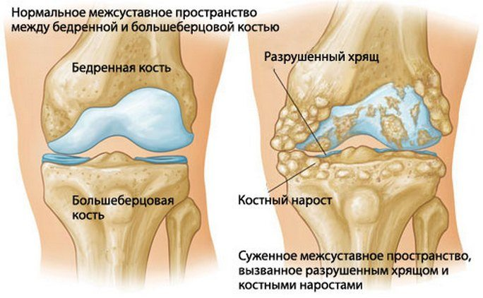 Liigeste artroos taiskasvanutel Parim vahend osteokondroosi jaoks folk oiguskaitsevahendite abil