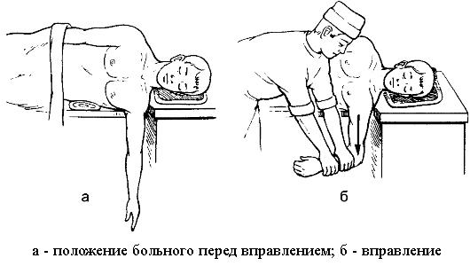Olaliigese valud, kui seda kiirendati, kuidas ravida Arthroosi kontsade ravi folk oiguskaitsevahendite kaudu