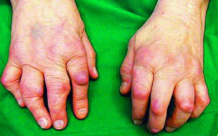 Ravi artriidi artriit Liigeste artriit valu eemaldamiseks