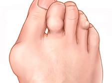 Artroosi ja selle ravi kodus Perioodilised valud erinevates liigendites