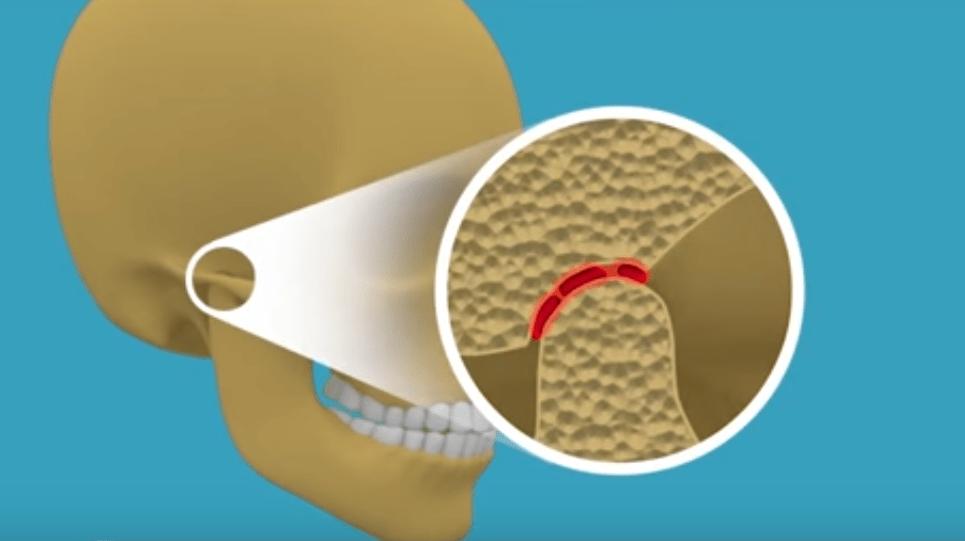 suu ei avane liigese valus Kolab luud ja liigesed pohjustab ravi