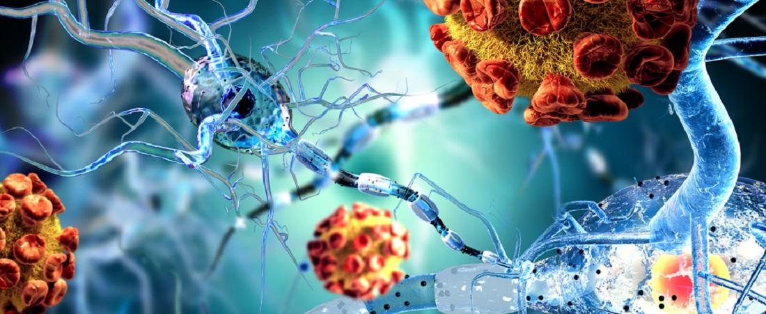 Arthroosi liigeste maitsetaimede ravi