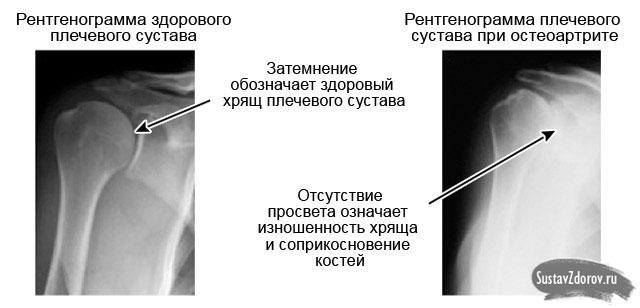 Mida teha ola liigese artroosiga Artriit olaliigese rahva