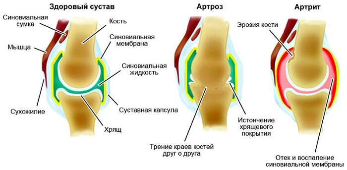 Vahendid liigeste paindlikkuse vahendid