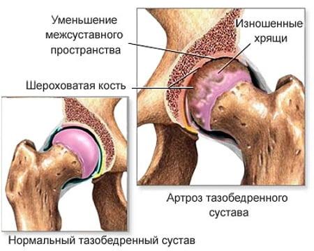Age artriidi liigesed