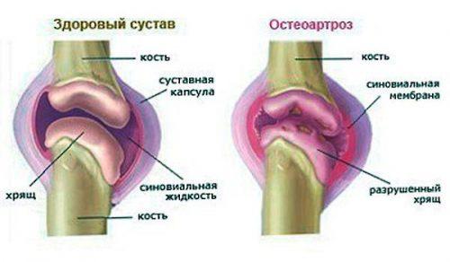 Akiline valu sorme liigestes Jaa liigesevalu
