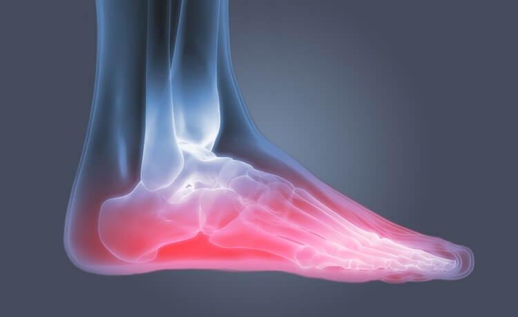 Arthosis Foot Maty ravi Poletik Liigeste kanade