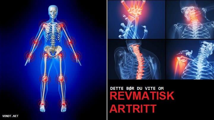 Artriidi artroosi ja nende ravi