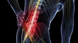 Artriidi ja artroosi ravi kuldne vuntsid
