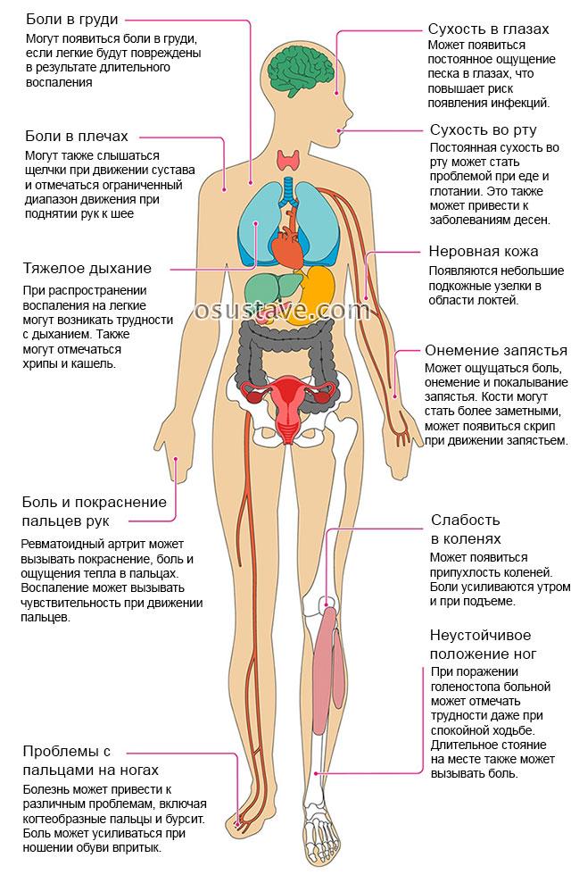 Artriidi liigese loualuu ravi