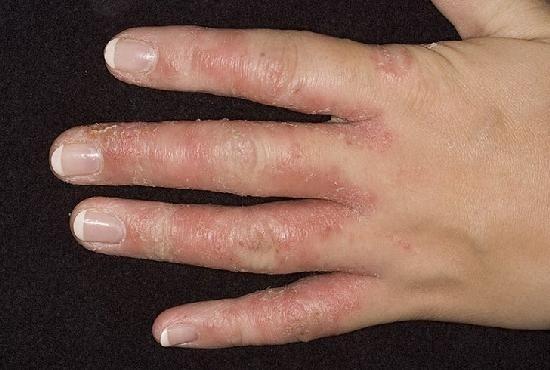 Artriit jala sormedes Valu liigestes ja salvides