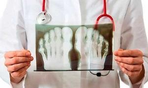 Artroosi ja artriidi nalga ravi Valu kuunarnukis ja MISMA tuimus