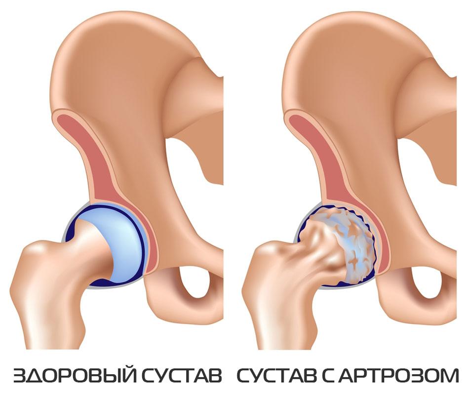 Artroosi ja selle ravi kodus Artrohi ola kuunarnukk
