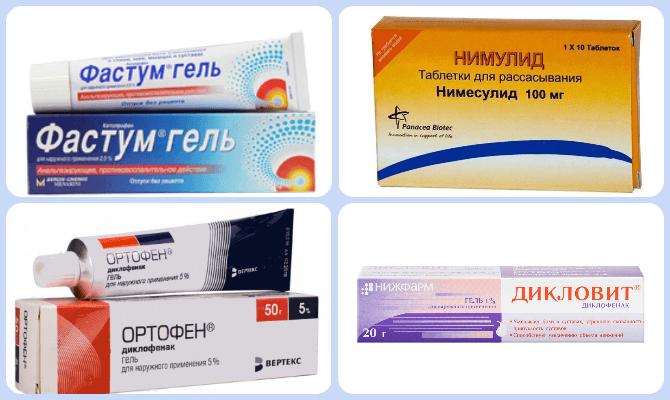 Artroosi ravi meditsiinilised meetodid