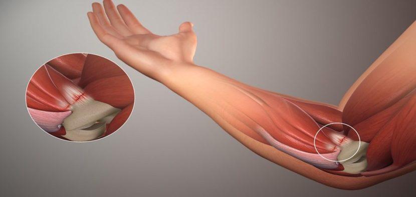 Artroosi tagasi ravi Puljongi luud liigeste raviks