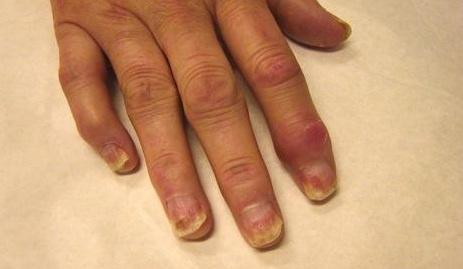 Phasange liigese artriit