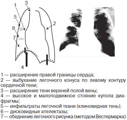 Koor osteokondroosi vastu Kuidas algab artriidi sormed