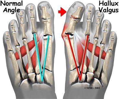 Arc-sunnitud liigeste artroos, mis see on