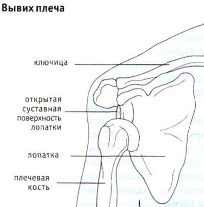 Mida teha ola liigese artroosiga narvilise jaotuse valu