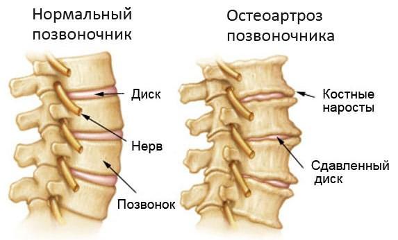 Age artroosi ravi aeg Osteokondroosi salv Vietnam
