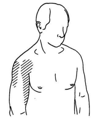 Valu ola kuunarnukis Toetab artroosi 2 kraadi