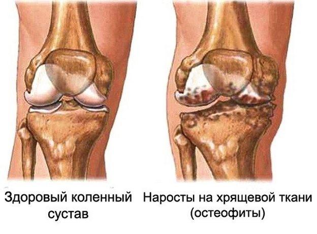 Liigeste haiguste artriidi ja artroosi jareldus