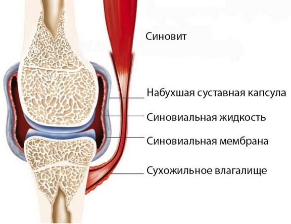 kus krooniline artriit toodeldakse