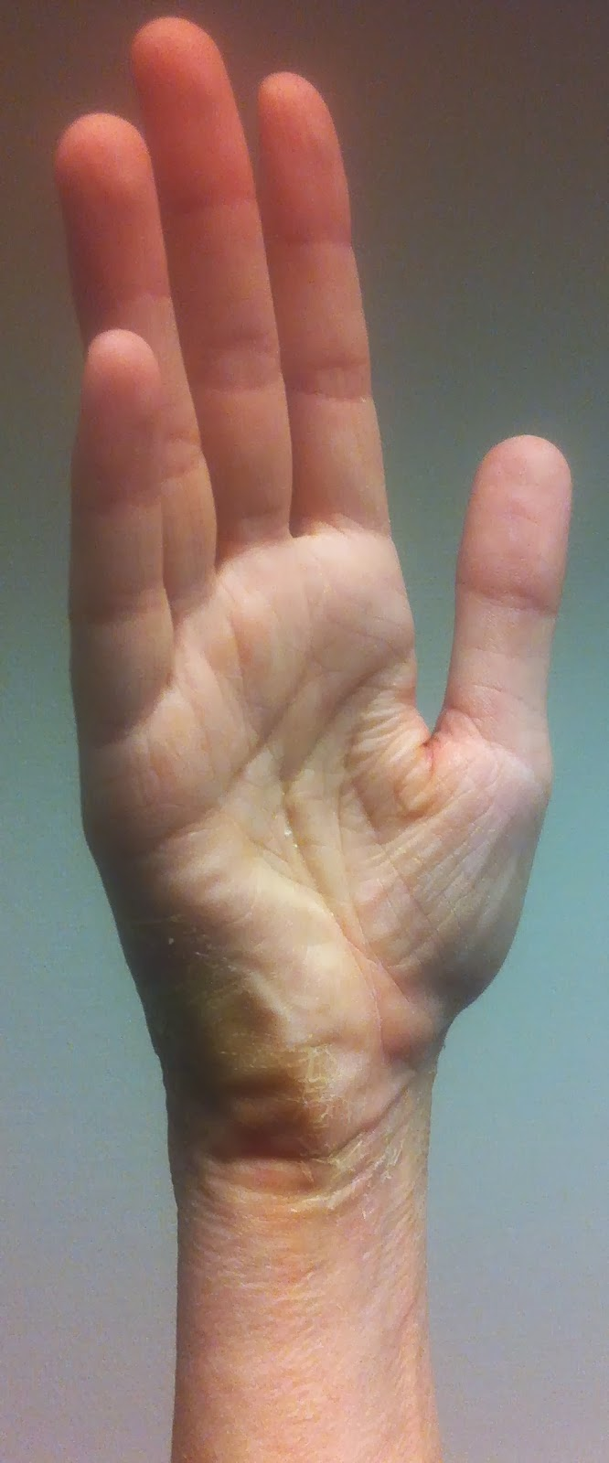 Valutab vasaku kae sormele liiget Haige klippe polve