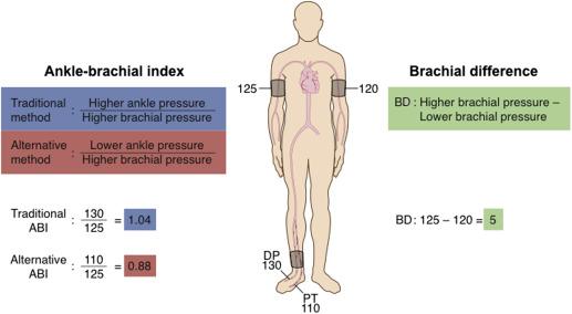 Liigeste ja luude ravi vaagna