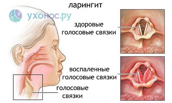 Hupertureoidismi valus liigesed