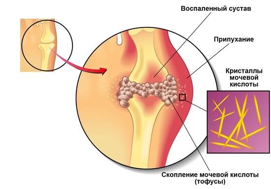 Puelonefriidi valu liigestes ja lihastes Salv dislokatsiooni liigestest