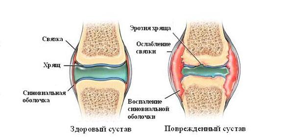 Kuidas eemaldada turse ajal liigeste artriidi ajal turse Emakakaela uhise tarud